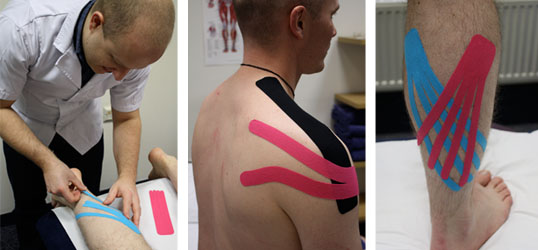 Kinesio tape in Nottingham